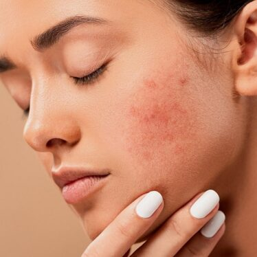 Acne Home Remedies: How to Alleviate It Naturally